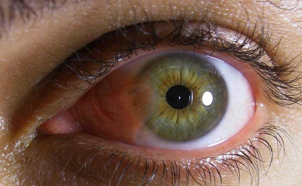 m-eye-e