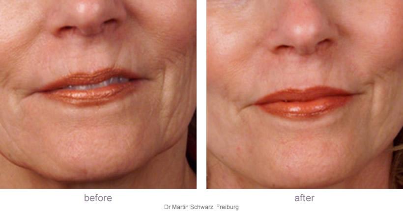 dermaroller-top-lip-before-after-large