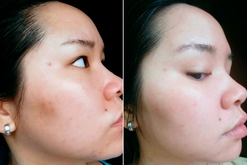 serum-before-after